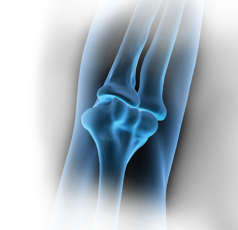 X-ray elbow background